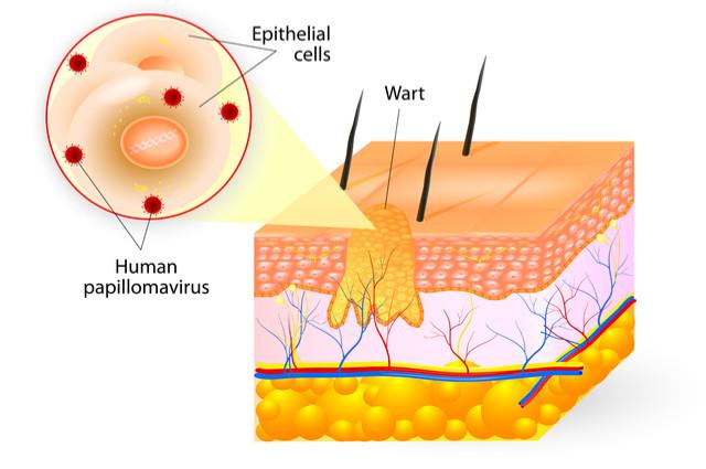 Warts cross section image by Designua (via Shutterstock).